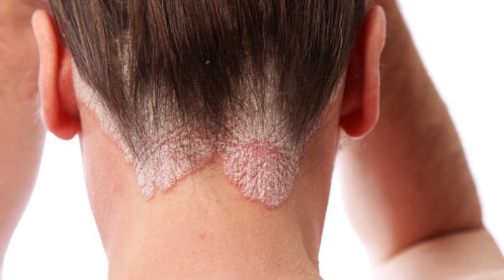 Tea Tree Oil is a Natural Remedy for Managing Scalp Psoriasis