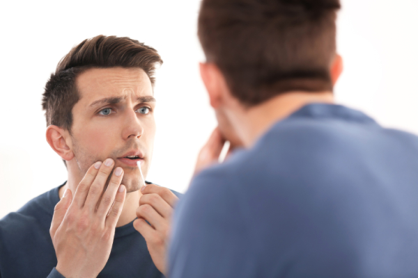 5 Cold Sore Triggers and How to Fight Back Against Them