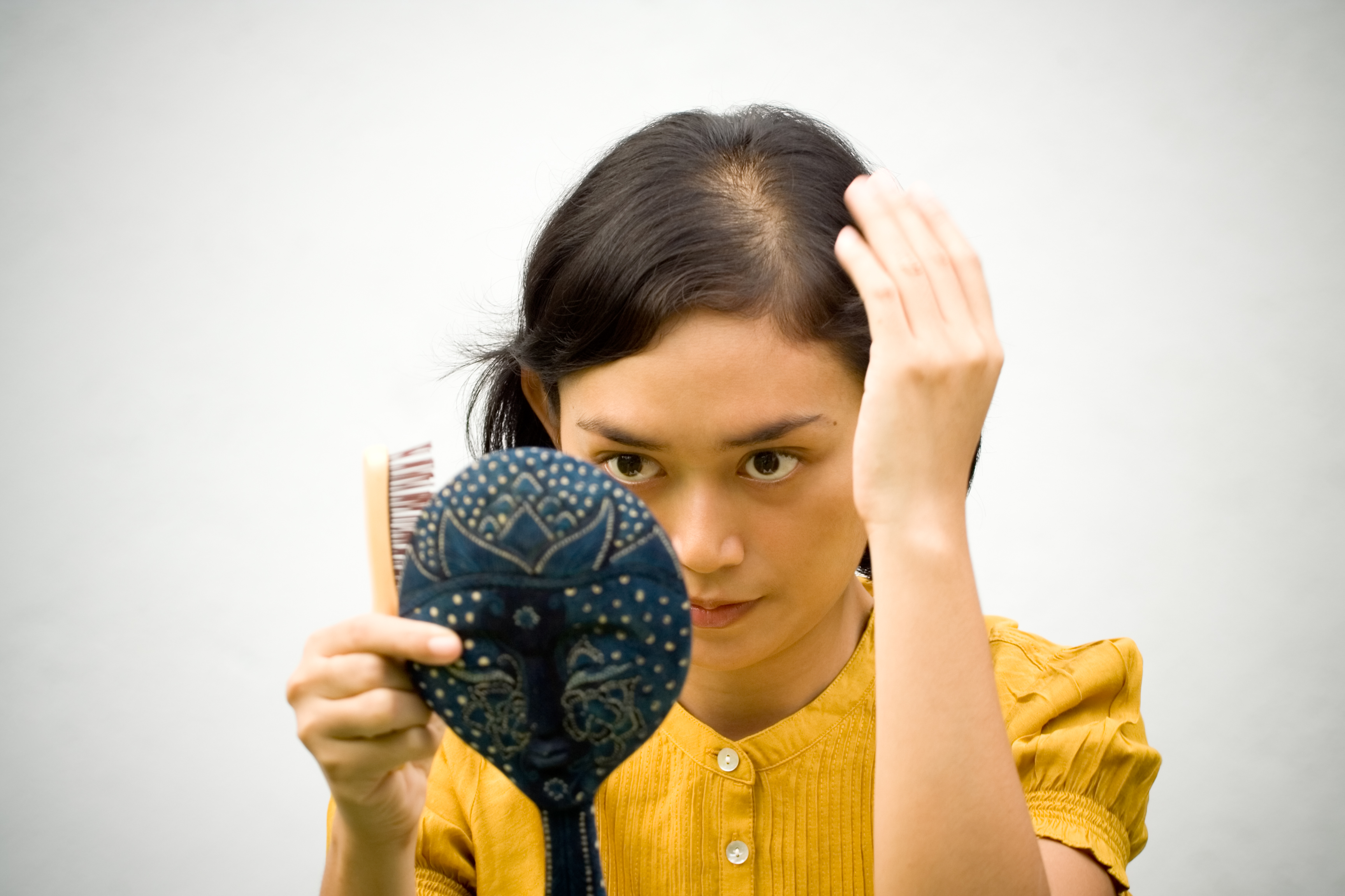 Recognizing and Coping with Female Pattern Hair Loss