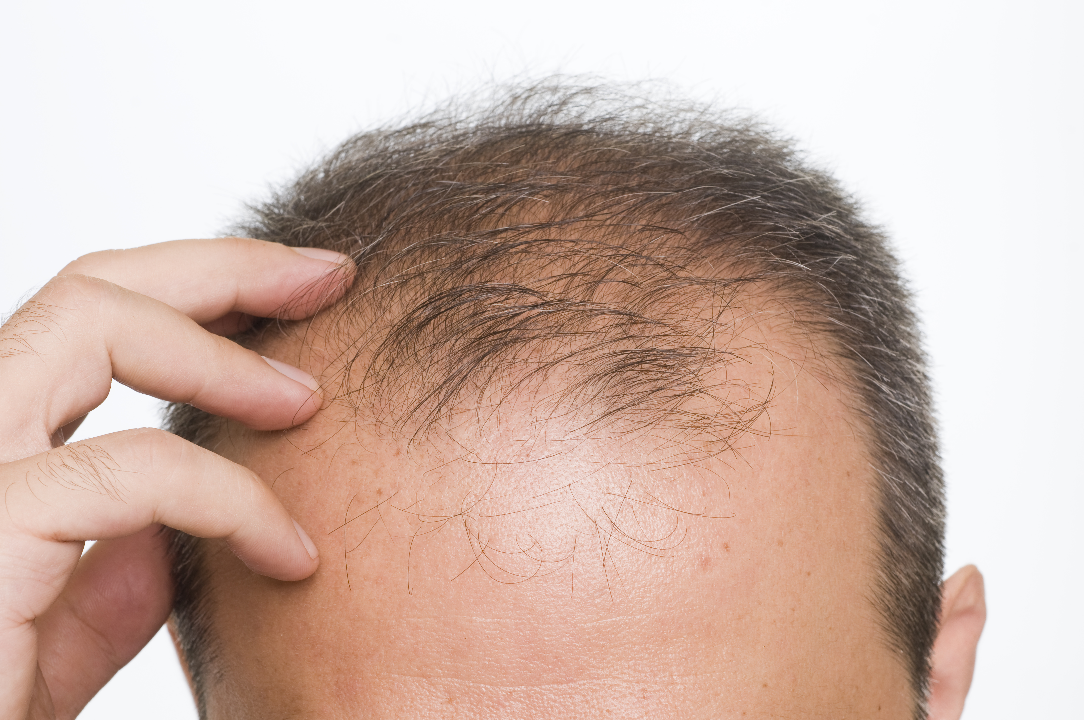 The Differences Between Men's and Women's Hair Loss