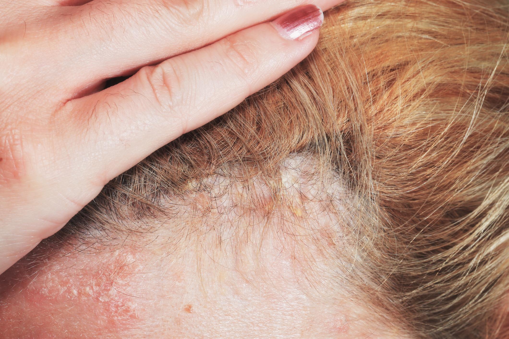 Is it Dandruff? Or Is it Scalp Psoriasis?