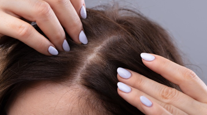 How PCOS Can Affect Your Hair